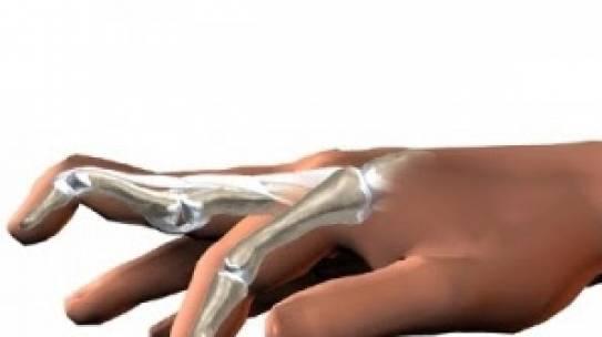 Dedos em martelo: Suas causas, sintomas e tratamentos