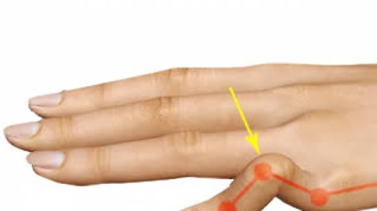 Deformidade em botoeira – Lesão do tendão extensor central do dedo.